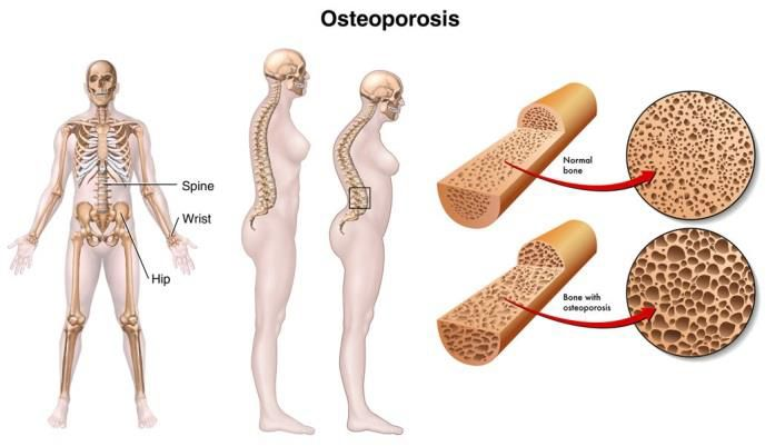 Prevalence of osteoporosis in older adults